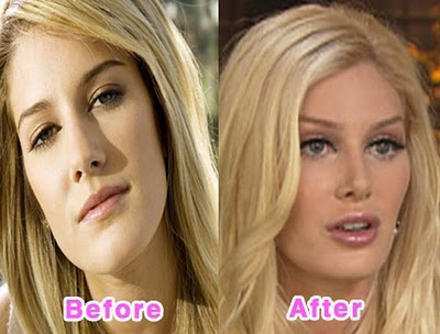 Plastic Surgery Gone Bad: Plastic Surgery Regrets of the Stars