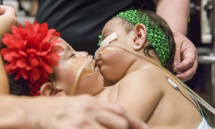 Conjoined Twins Separated:  Twins Recovering In Hospital