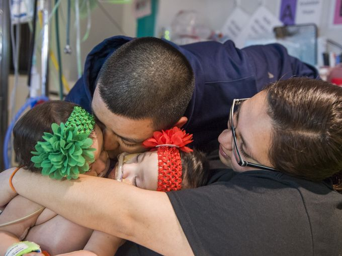 CONJOINED TWINS SEPARATED AT TEXAS CHILDREN'S HOSPITAL