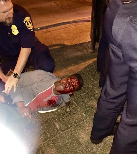 Martese Johnson Bloody Arrest: University Students Continue To Protest