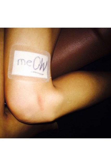 Taylor Swift Cat Scratch:  Switf's Kitty Scratches $40-M Leg
