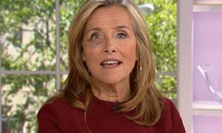 Meredith Vieira expplains black eye