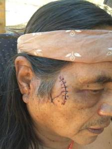 The right side of Larry Yepez's face, where a 200-pound black bear latched on during an attack early Thursday morning. Special to The Bee