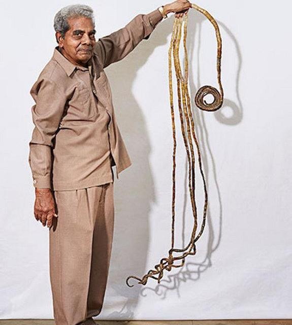 World's longest fingernails To Be Donated (VIDEO)