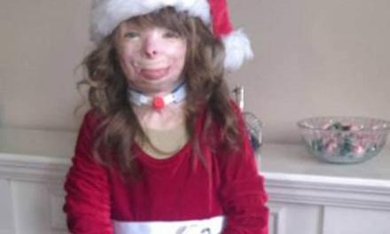 Safyre Terry:  8-Year-Old Burn Victim Only Wants A Christmas Card From Katy Perry