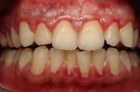 Gum disease Alzheimer's linked Study Suggests