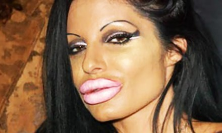 Americans had record number of lip procedures last year