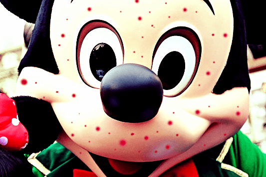 mickey measles