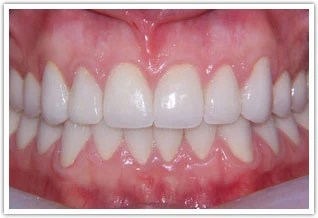 Prosthodontics  Reconstructive Dentistry Photo Gallery
