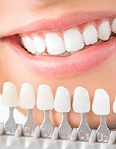 Porcelain veneers smile compared with tooth color chart also the woodlands cosmetic dentistry teeth whitening rh dcunninghamdds