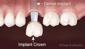 Dental implant crown.