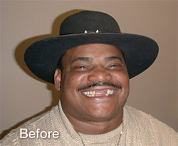 William the Refrigerator Perry Smile Makeover