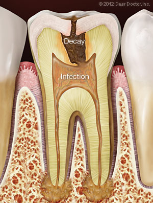 Tooth Infection.