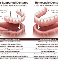 implant supported fixed dentures vs removable dentures  [ 1000 x 789 Pixel ]