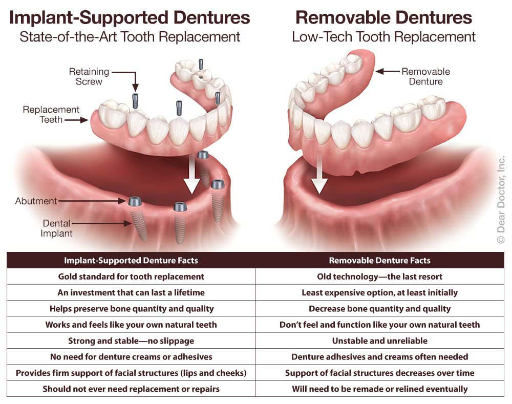 hight resolution of implant supported fixed dentures vs removable dentures
