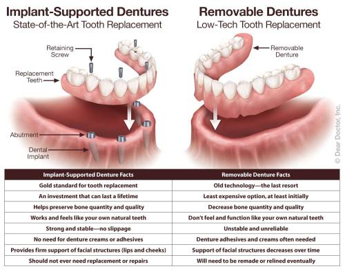 small resolution of implant supported fixed dentures vs removable dentures