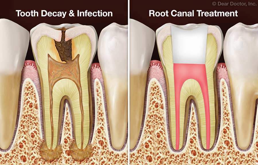 Frequently Asked Questions About Root Canal Treatment | Dove Dental Associates | Mount Vernon New York
