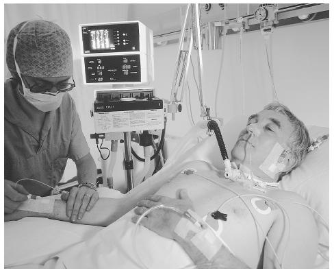 An intensive-care patient is aided by several of the many life support systems available. PHOTO RESEARCHERS