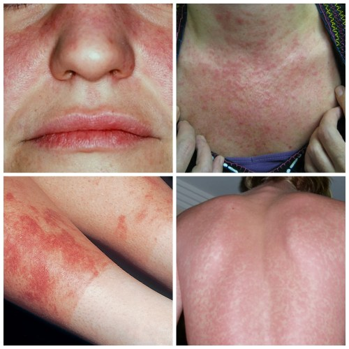 sun rash lupus collage