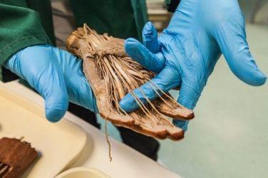 Anatomía: primer examen de la carrera de Medicina.