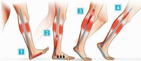 DEL CINE AL HOSPITAL Celulitis: la enemiga a destruir. ¿Se puede?
