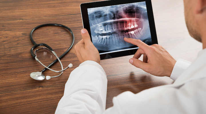 Thinking Beyond Four Walls: Teledentistry
