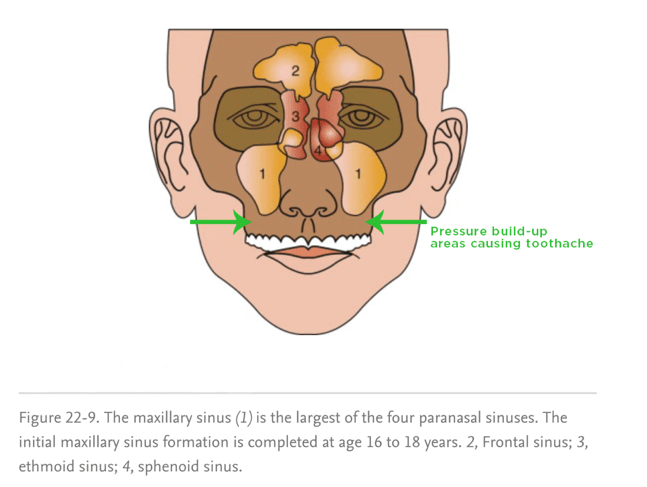 The maxillary sinus is made up of a right sinus and a left sinus. Because they sit above the back molars of the mouth, sinus pressure can cause tooth pain.