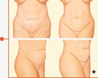 Before & After Tummy Tuck Photo Example