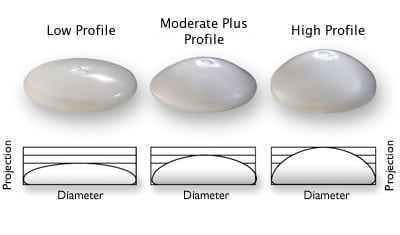 Breast implant profiles: high profile vs moderate vs moderate plus