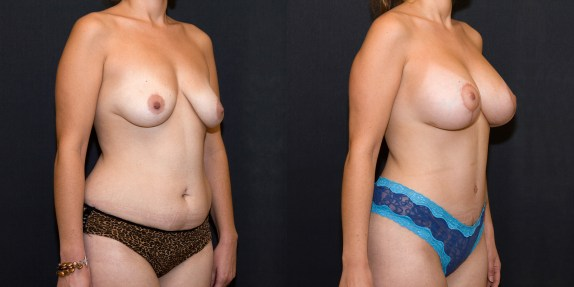 Breast Augmentation (Mastopexy) Before and After - Grade I Ptosis