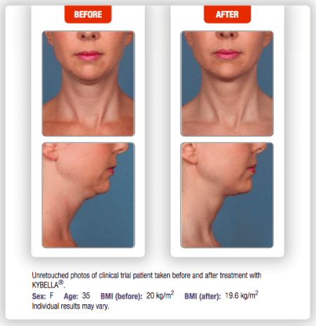 Treating Neck Fat with Kybella