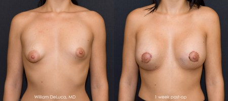 Tuberous Breast Correction (Australia Patient) - Before & After Photo 2a