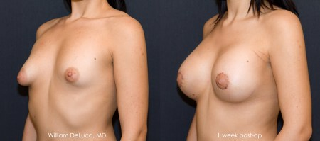 Tuberous Breast Correction (Australia Patient) - Before & After Photo 2b