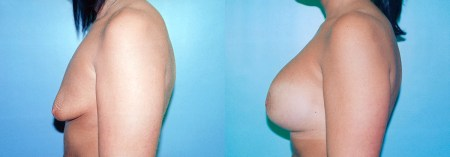 Before & After Tubular Breast Correction (Case 1c) - DeLuca Plastic Surgery