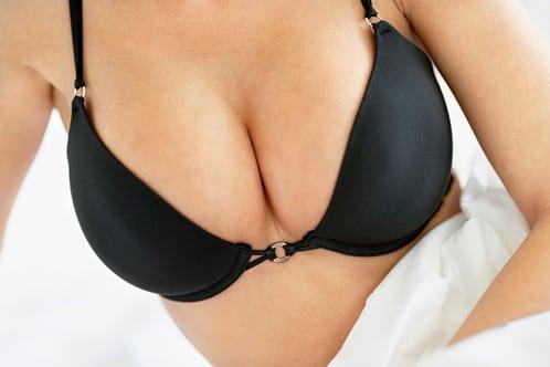 Breast Augmentation Image - DeLuca Plastic Surgery