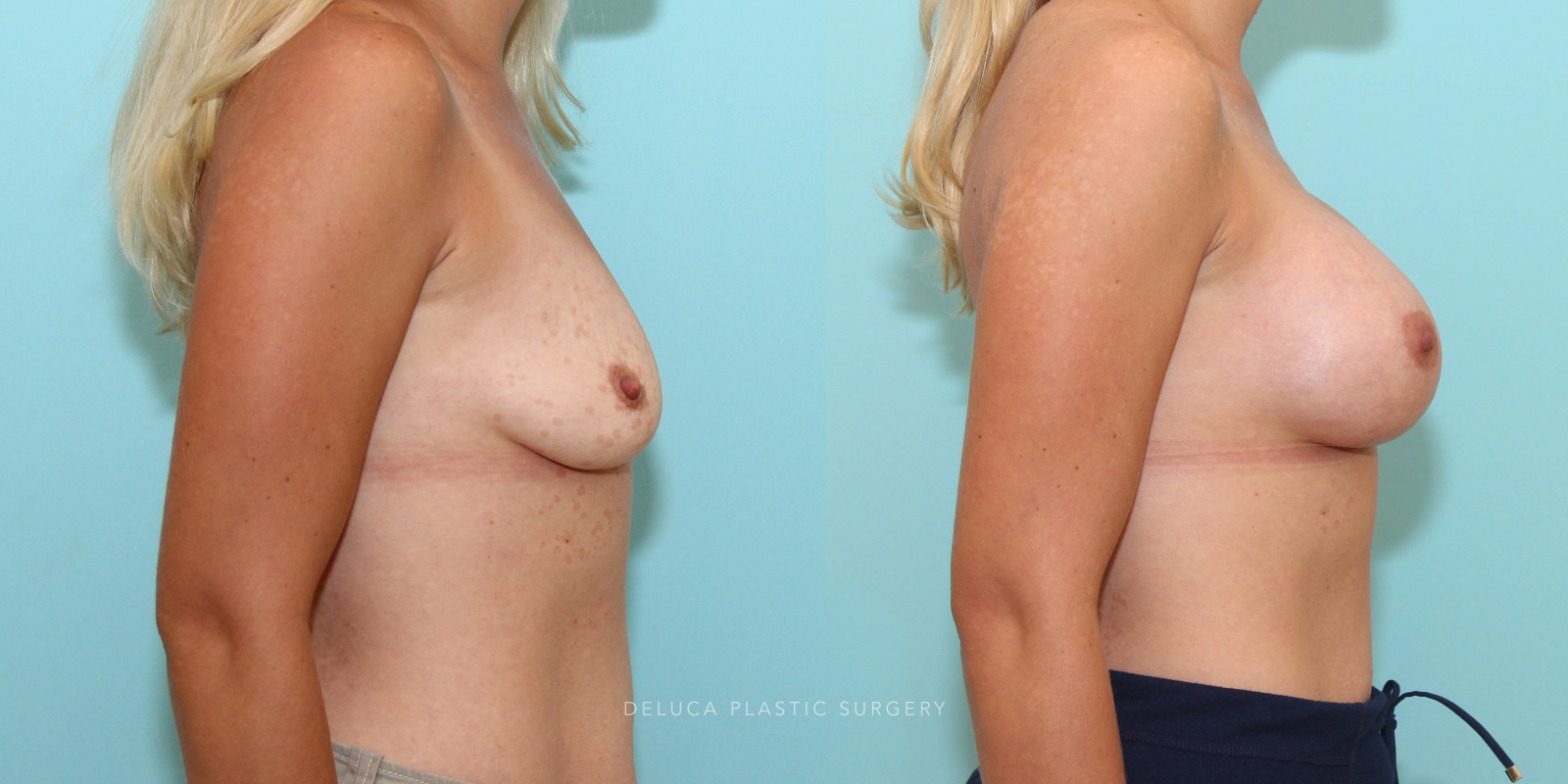 33 year old Dual Plane Asymmetric Breast Augmentation with 350ml and 400ml High Profile Silicone Implants