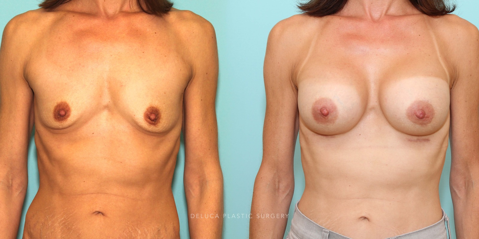 44 year old Dual Plane Asymmetric Breast Augmentation with 375ml High Profile Silicone Implants
