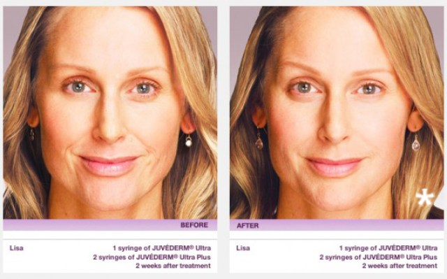 Juvederm - Before & After Example