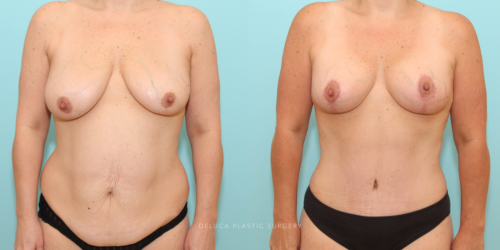 43 year old Mommy Makeover - Breast Lift and Augmentation and Abdominoplasty