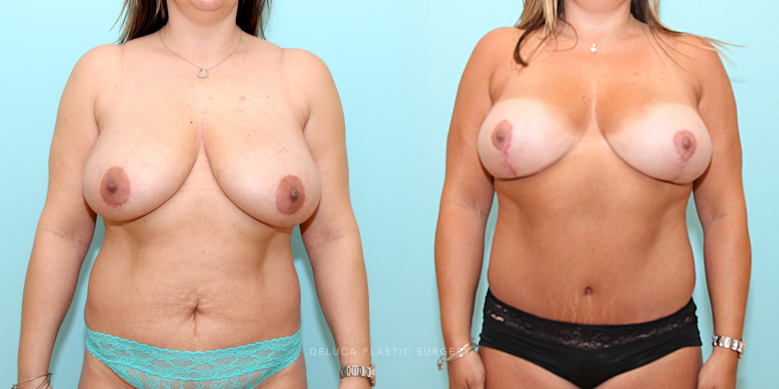37 year old Mommy Makeover- Breast Lift (Mastopexy) and Tummy Tuck (Abdominoplasty)