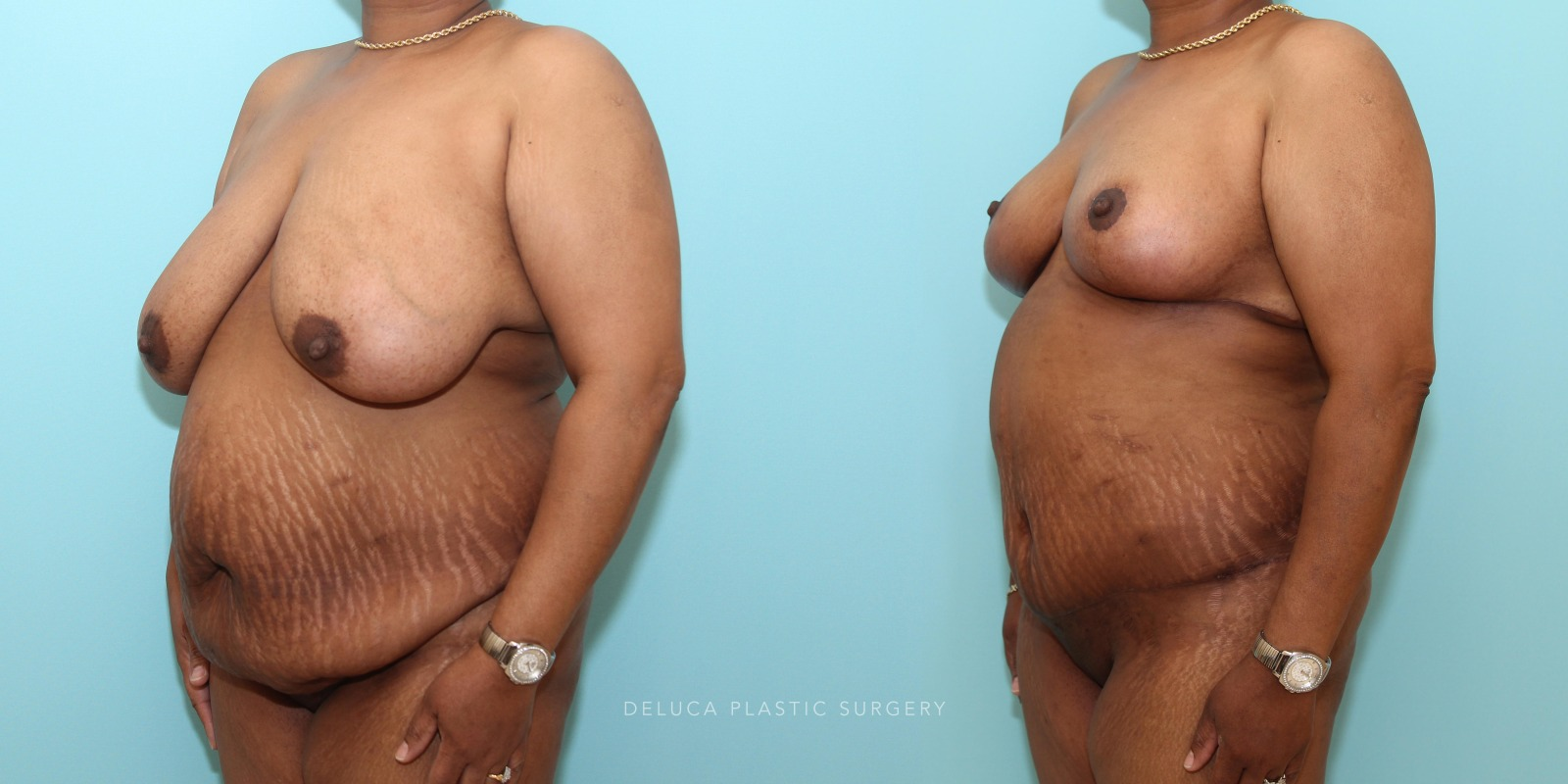 53 year old woman Mommy Makeover - Tummy Tuck (Abdominoplasty) and Inferior Pedicle, Wise Pattern Breast Reduction