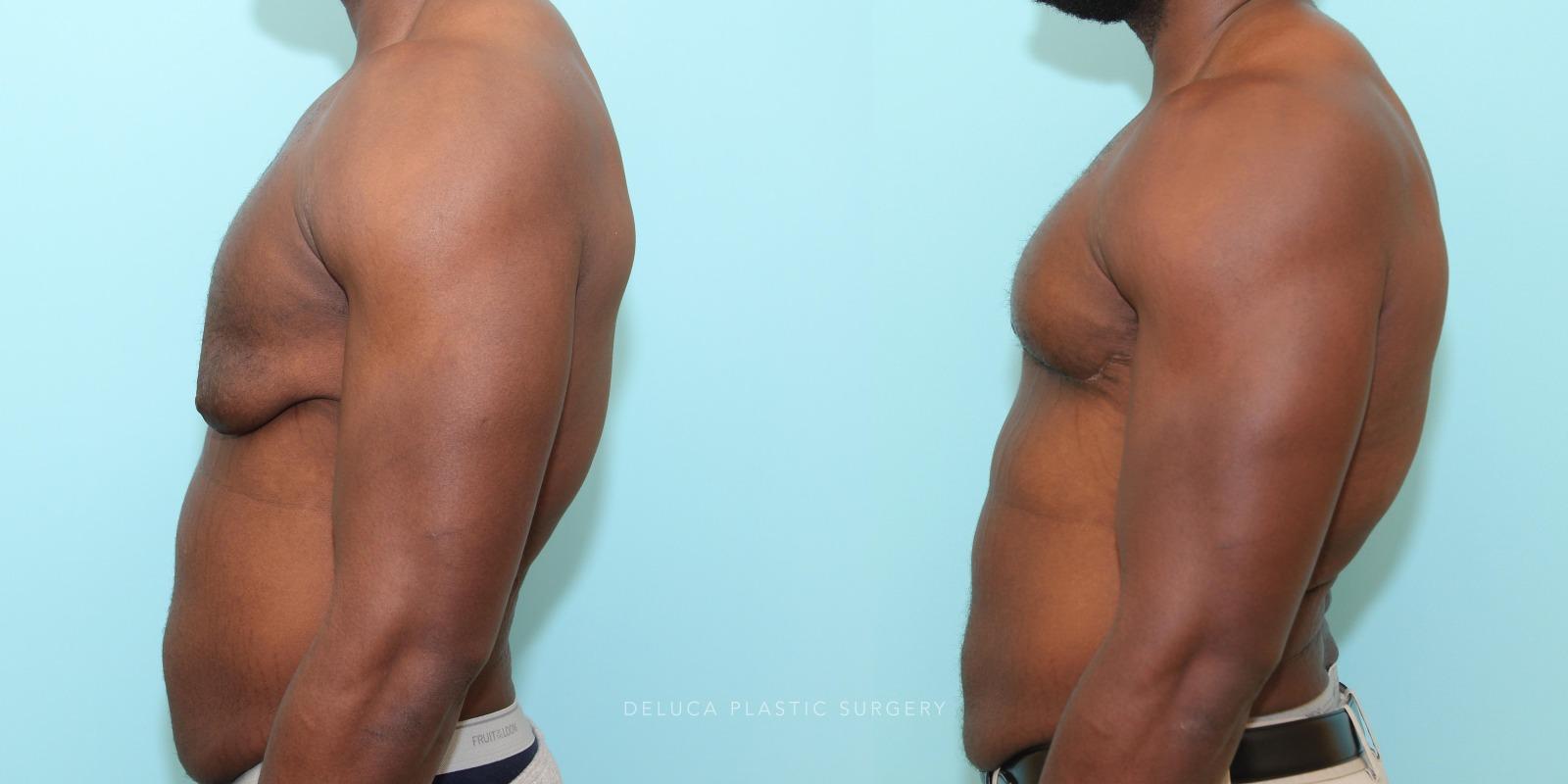 24 year old Correction of Gynecomastia Using Double Incision Free Nipple Graft