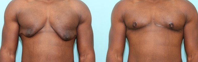 24 year old Correction of Gynecomastia Using Double Incision Free Nipple Graft