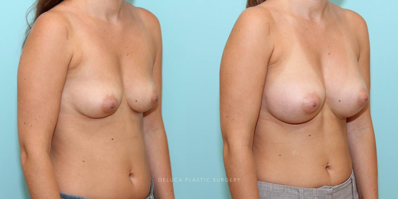 26 year old Dual Plane Breast Augmentation with 375ml Moderate Plus Silicone Implants