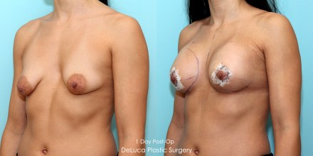 Tubular breast augmentation correction, before & after 2