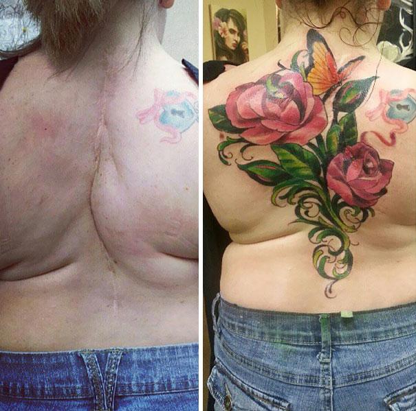 scars tattoos cover up 44 - 50 Incríveis tatuagens de encobrimento de cicatrizes