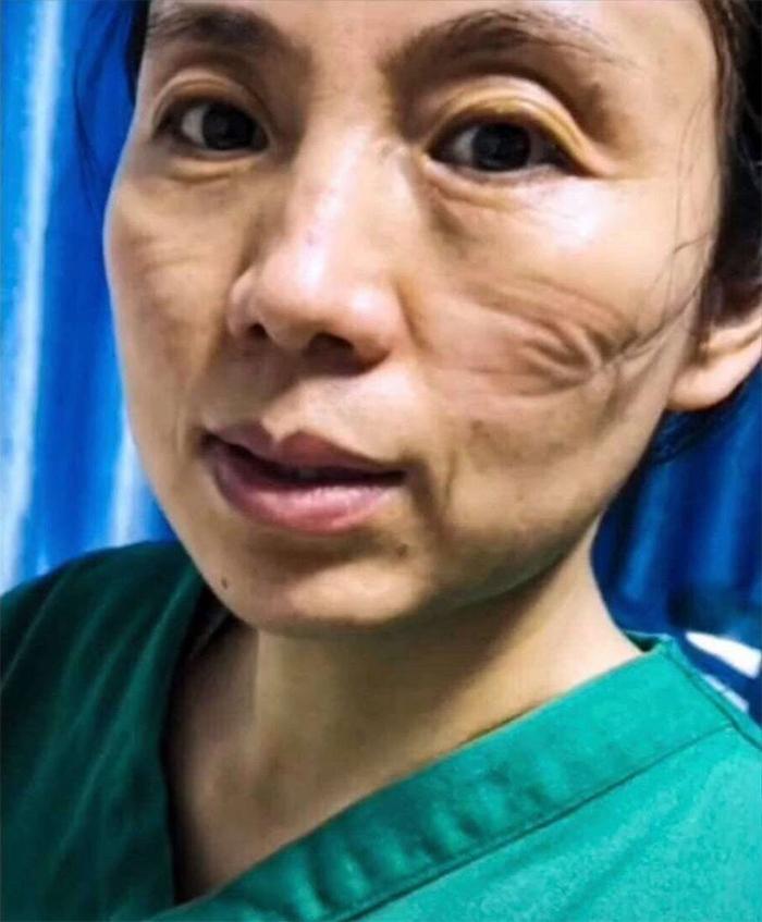 5e41144ea36d1 chinese nurses face masks corona virus 3 5e3d2fc4c99cd  700 - Coronavírus: Enfermeiras chinesas chamadas de heroínas ficam com feridas pelas máscaras