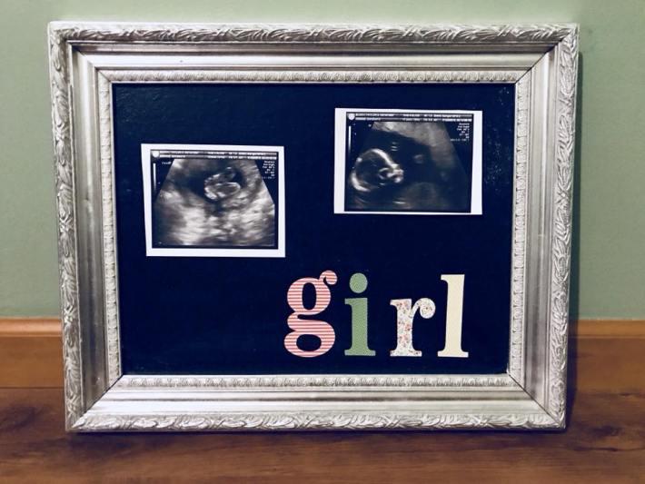 Dearest Daughter: It's a Girl