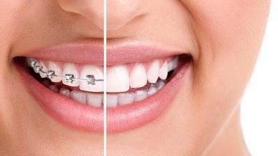 Ortodoncja Tarnów Ortodonta Dąbrowa Tarnowska Leczenie ortodontyczne
