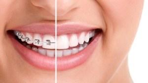 Ortodoncja Tarnów Ortodonta Dąbrowa Tarnowska i leczenie ortodontyczne